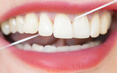 why is flossing your teeth important